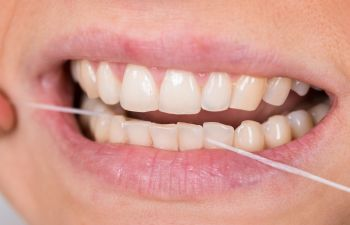 Closeup of Woman Flossing Teeth Roswell, GA