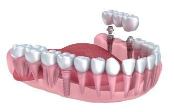 Dental implants visualization