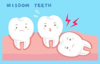 wisdom teeth graphic