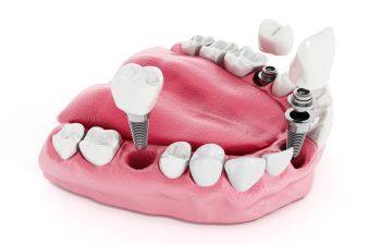 Dental implants visualization