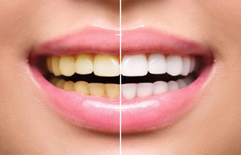 Whitening Teeth Roswell GA