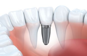 Dental Implant Roswell, GA